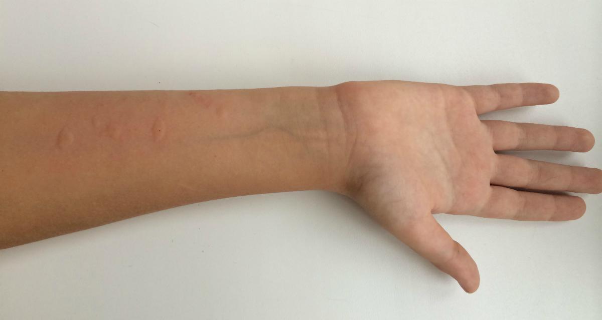 кожное тестирование на аллергию
